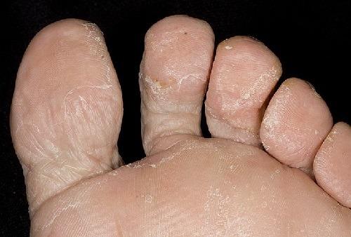 Быстро убить грибок ногтей