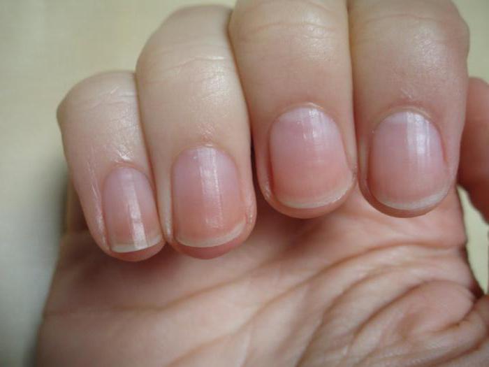 Строение ногтей 6 элементов о которых надо знать