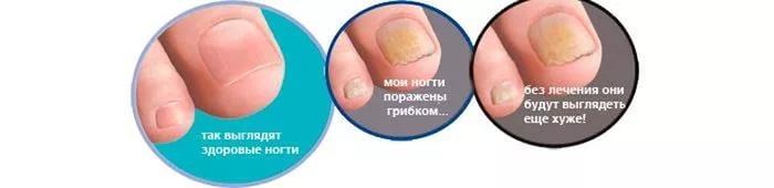Что помогает от грибка ногтей на ногах