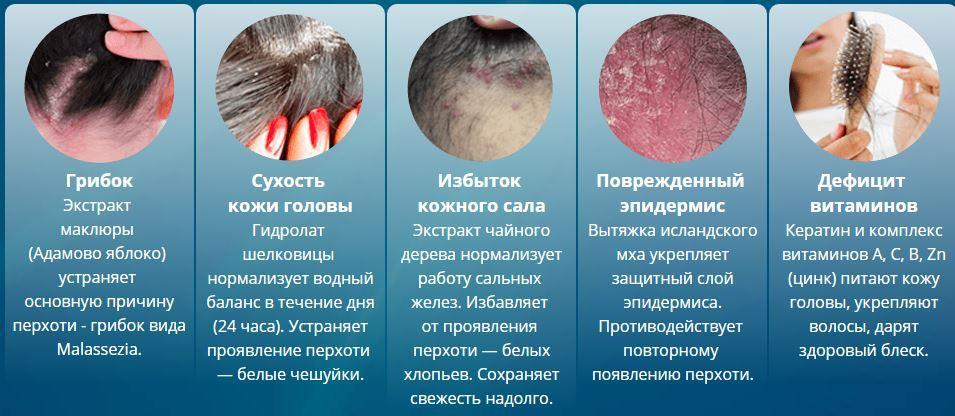 Лечение перхоти и выпадения волос: Лечись дома !